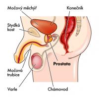 Popis prostaty